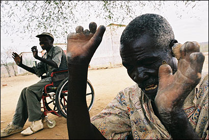 Amando Lucas, in his 60s, held up his deformed hands as he greeted a friend recently in the leprosy colony in Funda, Angola.