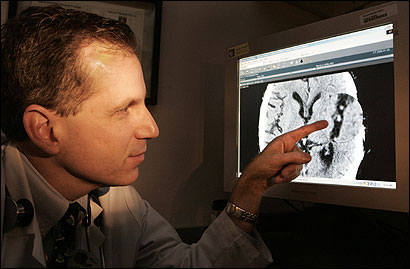 Dr. Lee Schwamm, director of Massachusetts General Hospital's telestroke and acute stroke service, looked at the digital CT scan of Paul Briggette's brain that was sent via the Internet.