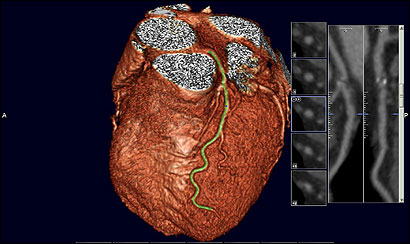 A computed tomography scan of a healthy heart shows the coronary artery running down the front. A scan showing calcium buildup in the artery could trigger treatment.