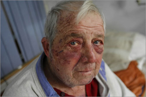 Arthur Wallace recuperated in his home after being attacked by one of his tenants.