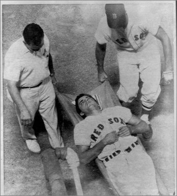 Tony Conigliaro On Aug. 18, 1967, the Red Sox were playing the Angels at Fenway Park. Conigliaro, batting against Jack Hamilton, was hit by a pitch on his left cheekbone, and was carried off the field on a stretcher. He sustained a broken cheekbone and severe damage to his left retina. A year and a half later, Conigliaro made a remarkable return, but he was forced to retire early in the 1975 season because his eyesight had been permanently damaged.