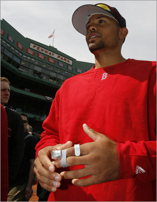 Crisp had his left knuckle in a splint after breaking it on a steal attempt of third base in Baltimore.