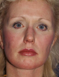 Catherine Greig also may have sought plastic surgery.