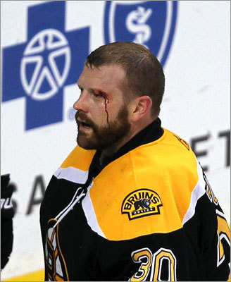 Tim Thomas was bloodied after a third-period collision in front of the net, but he certainly didn't break. Thomas made 36 saves to help the Bruins even the series 1-1.