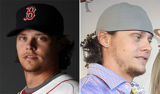Clay Buchholz Left: Feb. 20 Right: Aug. 29