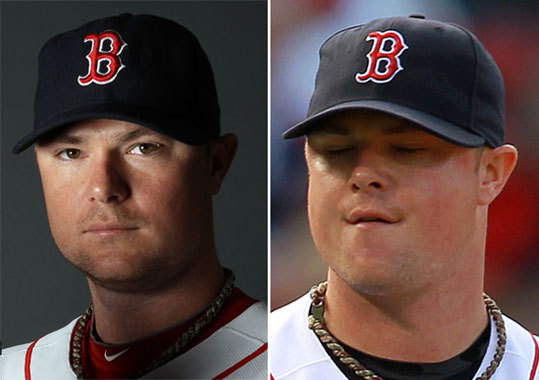 Jon Lester Left: Feb. 20 Right: Sept. 17