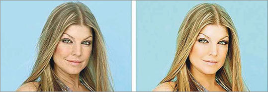 Fourandsix Technologies is developing software to analyze before and after photos, such as these of Fergie, and quantify the alterations.