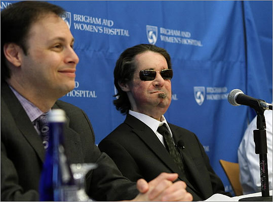 Brigham and Women's Hospital surgeons performed the first full face transplant in the United States, attaching a donor's face to Dallas Wiens, 25, (shown right) who suffered severe burns in a horrific electrical accident in 2008, the hospital said. Here, Wiens, one year after his April 2011 transplant, spoke with the media about his recovery. Wiens told reporters the surgery has given him the ability to smile again and feel his daughter's kisses Some of the following images are graphic, and may be disturbing to readers.