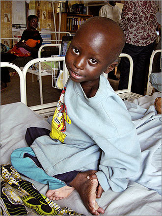 A boy in the malnutrition ward at Partners in Health's Rwinkwavu Hospital.