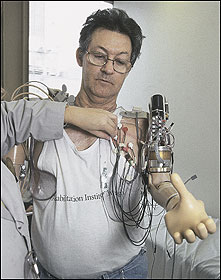 Jesse Sullivan manipulates an experimental version of the Boston arm, which may one day give him back what he lost when 7,200 volts of electricity shot through his body.