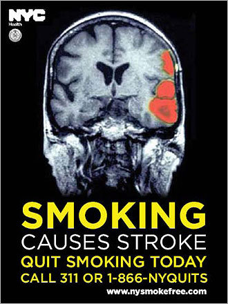 A poster warning of the risk of stroke due to smoking.