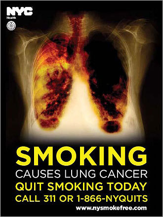 This poster gave a detailed look at lung cancer.