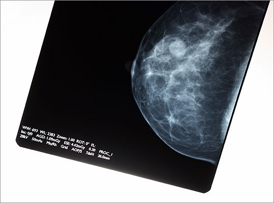 Mammography There is much controversy surrounding the recommended frequency that women should receive mammograms. In general, though, women starting at age 40 should talk to their doctor about having mammograms every 1-2 years; and by age 50, they should routinely get regular mammograms.