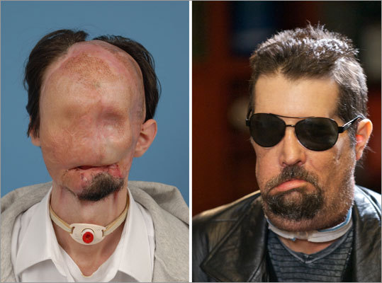 Dallas Weins, before and after the full face transplant procedure performed at Brigham and Women's Hospital in March 2011.