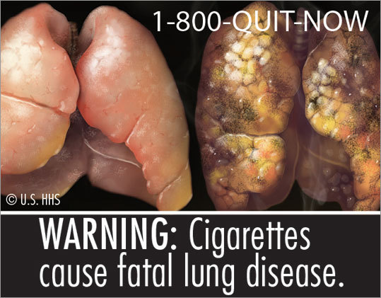 This ad shows the lung of a nonsmoker, compared to a smoker.