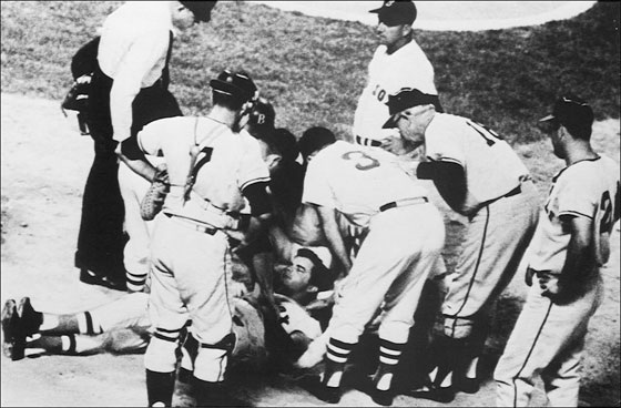 Red Sox player Tony Conigliaro is surrounded by teammates after being hit on the head by a fourth-inning fast ball from Jack Hamilton of the California Angels. Boston, August 18, 1967