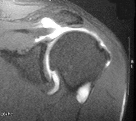 PMshoulder_mri1_big.jpg