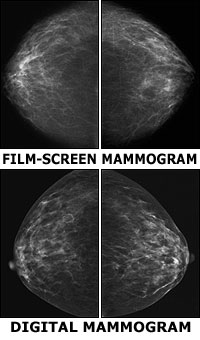 Film-screen versus digital mammogram