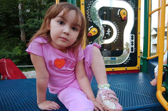 Emily Evans-Corkery, 3, is allergic to mustard, once developing hives as big as golf balls.