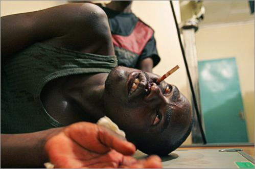 A Massai warrior who was shot in the face by an arrow during a bow and arrow battle against Kalenjin tribe warriors in the Kapune Hill on March 1, 2008 in Western Kenya waits for treatment.