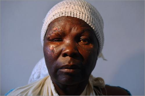 A victim of political violence awaits an x-ray at a clinic June 21, 2008 in Bulawayo, Zimbabwe. She said that she had no political party affiliation, but earlier in the week ruling party members had rounded her and fellow villagers up and trucked them to a campaign rally for President Robert Mugabe. She said she was pushed off the moving truck while returning from the event. Aside from facial wounds, the fall fractured her arm.