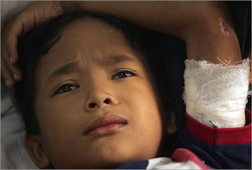 Raja Alam Putra, 9, from Banda Aceh, Indonesia being treated at the Pirngadi General Hospital in Medan, Indonesia for his injuries suffered during the tsunami. Debris caused injury to his arm and penetrated his back.