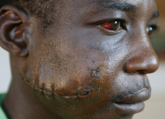 An unidentified Zimbabwean showed injuries that were inflicted by youth militia 'green bombers.' Some