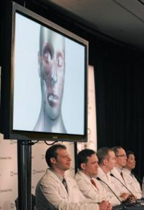 Doctors who took part in the nation's first near-total face transplant, at a Cleveland Clinic news conference.