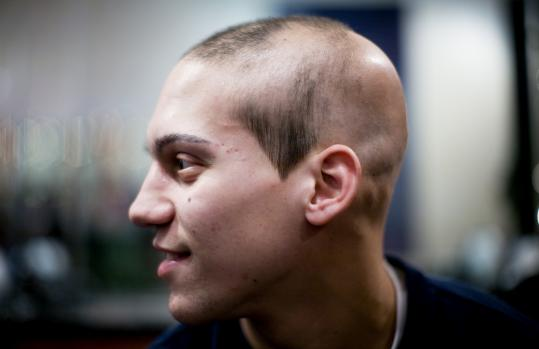 The bald spots on Davio DiSpena's scalp are the effects of the autoimmune disease the 18-year-old has lived with since he was 12.
