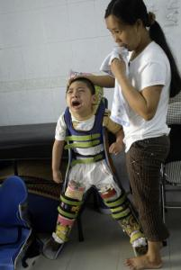 A 4-year-old boy whose father was exposed to Agent Orange during the Vietnam War, at a rehab session in Hanoi.