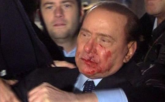 Italian Premier Silvio Berlusconi was bruised in the face after an attacker threw a statuette at him at a rally in Milan.
