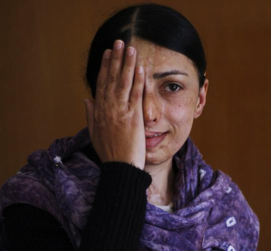 Somi Khalid, 26, had her eyes examined at the Acid Survivors Foundation in Islamabad, Pakistan. The group provides medical, psychological, and legal support to attack victims.
