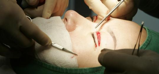 In the past decade plastic surgeries in the United States increased by 465 percent and most were paid for on credit.