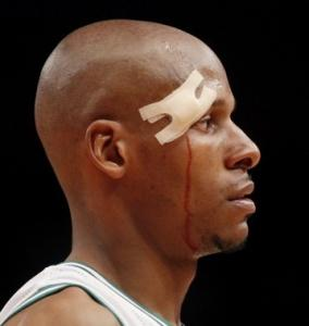 Ray Allen's return to action after getting injured Monday had to be inspirational.