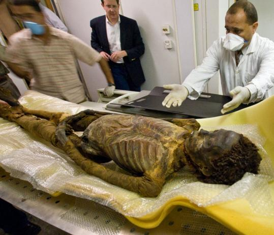 Egyptian princess Ahmose-Meryet-Amon, who lived circa 1540 BC, had calcium deposits in her coronary arteries.