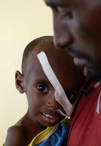 Abdulle Ibrahim holds his severely malnourished 3-year-old son at a refugee camp clinic near the Kenya-Somalia border.