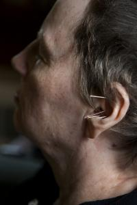 Judy Palladino relaxes with needles in her ears at the Veterans Acupuncture Care clinic in Framingham.