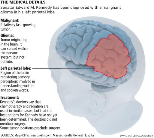 Diagram of the left parietal lobe - Boston.com